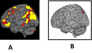 Brain Activity - Past or Future vs Present
